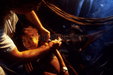 Christian Missionary at work caring for underfeeded Yanomami ( Ianomammi ) Indigenous child with malaria in Amazon rainforest  Brazil. Physician. Surucucus region; State: Roraima; Amazon rainforest; North Brazil.