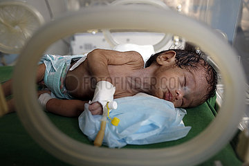 YEMEN-SANAA-WAR-TORN ZONE-BABIES