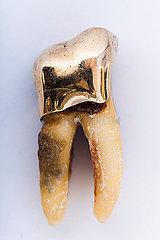 Backenzahn mit Goldkrone