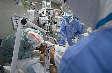 CHINA-WUHAN-COVID-19-Severe CASE-LUNG FUNCTIONS-RECOVERY (CN)