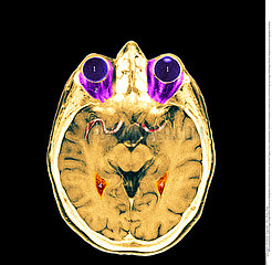 TETE RMN!!HEAD  MRI