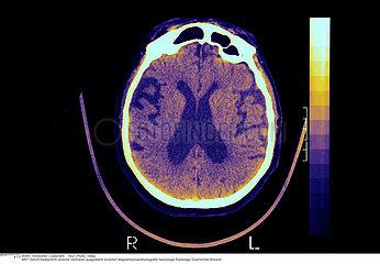 ALZHEIMER MALADIE SCANNER!!ALZHEIMER'S DISEASE  SCAN