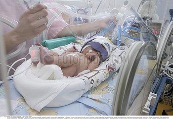 PREMATURE!!PREMATURE BABY