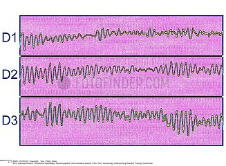 FIBRILLATION VENTRICULAIRE ECG!VENTRICULAR FIBRILLATION  ECG