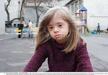 CHILD  DOWN'S SYNDROME