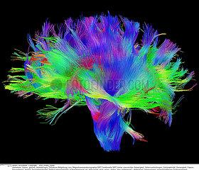 Diffusion MRI Reveals White Matter Architecture