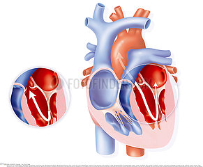 MITRAL INSUFFICIENCY  DRAWING