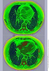 HEART  MRI