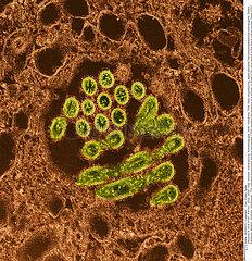 INFLUENZA A H1N1 VIRUS Imagerie