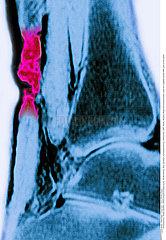 RUPTURED TENDON  MRI