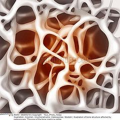 OSTEOPOROSE DESSIN