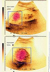 CANCER REIN ECHOGRAPHIE