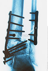 osteosunthesis tibia and fibula