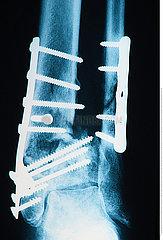 osteosunthesis tibia and fibula