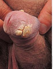 Hyperplasie ?pith?liale verruqueuse sur lichen scl?reux du gland