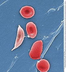 SICKLE CELL ANEMIA Imagerie