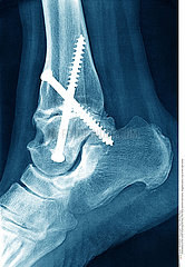 ANKLE OSTEOSYNTHESIS  X-RAY