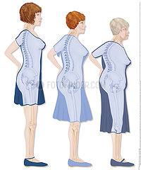 OSTEOPOROSIS ILLUSTRATION