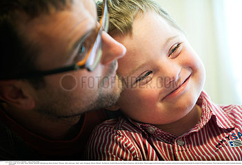 CHILD  DOWN'S SYNDROME Reportage