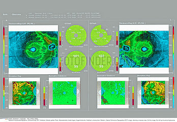 OPTICAL COHERENCE TOMOGRAPHY