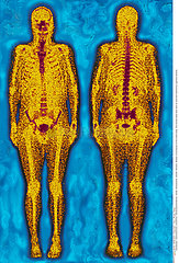 WHOLE BODY SCINTISCANNER Imagerie