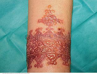 R?action allergique importante apr?s un tatouage au henn?