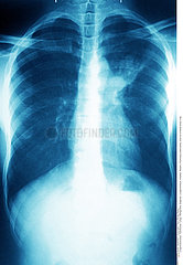 PULMONARY TUBERCULOSIS  X-RAY