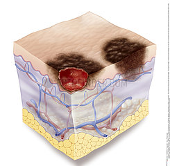 MELANOMA ILLUSTRATION