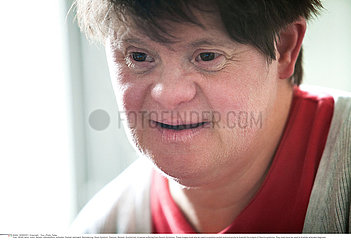 ADULT  DOWN'S SYNDROME Reportage