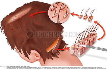 IMPLANT HAIR  DRAWING