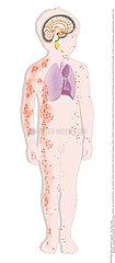 Kinderkrankheiten / CHILDHOOD DISEASE Illustration