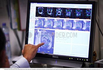 Focused ultrasound treatment of uterine leiomyoma