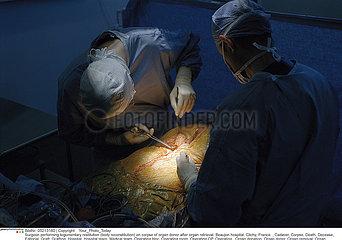 Organ graft