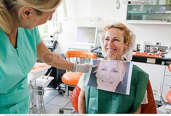 Dental facet