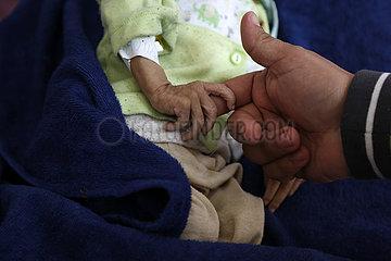 YEMEN-SANNA-FAMINE-CHILDREN