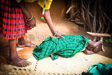 Malaria - Kleinkind mit hohem Fieber