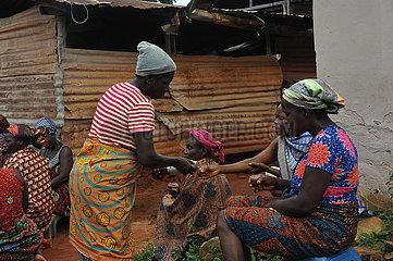 Ghana-Volta-Region-Sandfliese-Infektion